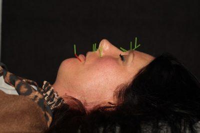 Kvinde med kosmetisk ansigtsakupunktur nåle i ansigtet. Kosmetisk akupunktur Næstved. Lene Kryger.