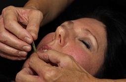Lene Kryger udfører kosmetisk akupunktur i ansigtet. Naturli-behandling.dk