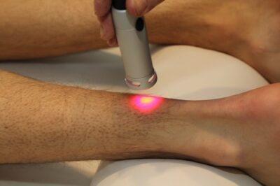 Smertebehandling med laser på ben. Laser ses som rødt lys. Lene Kryger.